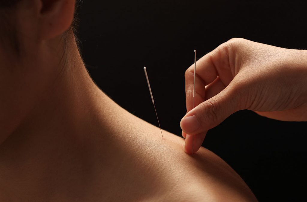 acupuncture_benchmark_elliott
