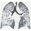 E-Cigarettes and Vaping-Related Disease: Vaping-Induced Lung Injury